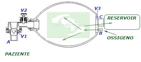 L'ossigeno fluisce dalla bombola nel corpo centrale dell'ambu e gonfia il reservoir