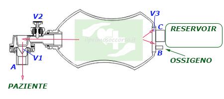 Il soccorritore comprime l'Ambu e l'aria viene spinta verso il paziente. La valvola V3 blocca l'uscita dell'aria verso l'ambiente