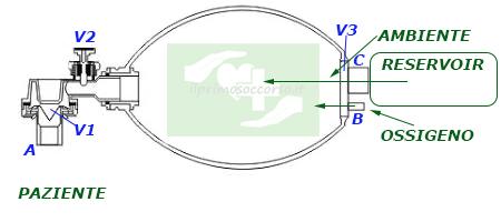 L'ambu si riempie nuovamente. Qual'ora mancasse l'apporto del reservoir, attraverso la valvola V3 può entrare aria ambiente