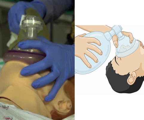 Tecnica corretta di posizionamento della maschera Ambu sul volto del paziente